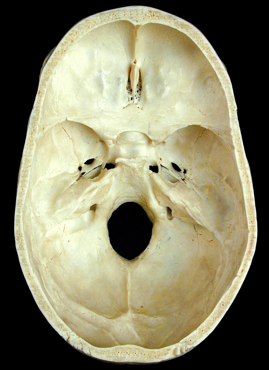 anatomyexpert - anterior clinoid process of the sphenoid bone, Human Body